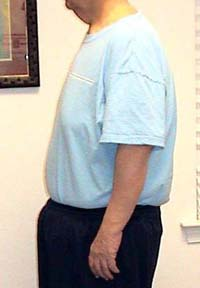 53 Year Old Male Lost 125 Pounds in 10 months - Weight Loss ...