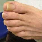 Diabetes Feet Neuropathy